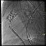 zabieg przezcewnikowej implantacji zastawki pnia płucnego